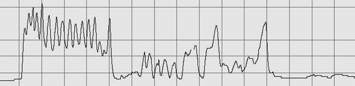 Anhand der aufgezeichneten Messkurve kann die Festigkeit beurteilt werden